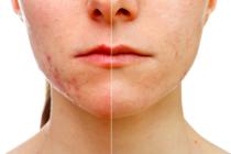 Ácido Hialurónico para cicatrices